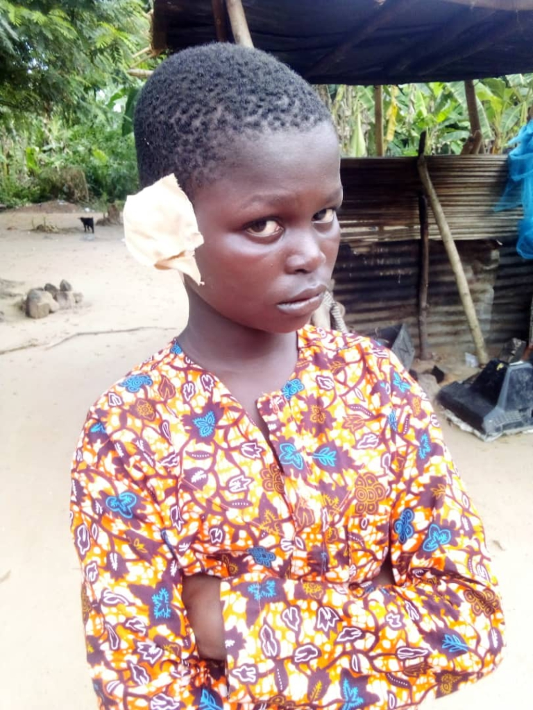 Man cuts off son's ear, burns his fingers for stealing ¢250 ...