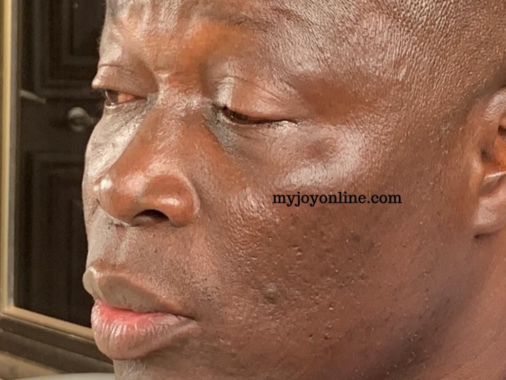Nii Lante Vanderpuye accuses National Security operatives of brutalising  him - MyJoyOnline.com