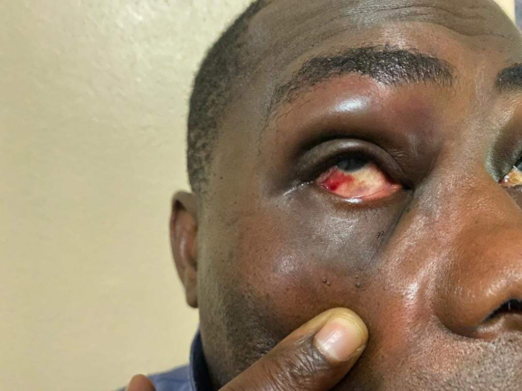 NPP's Charles Bissue's face swollen after fight with Tarkwa-Nsuem MP