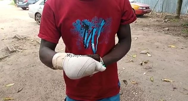Alleged phone thief chops off owner's 4 fingers